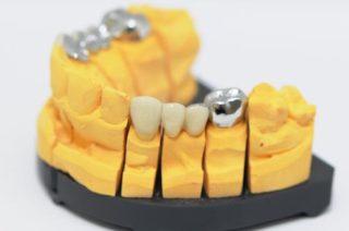 Darstellung eines Zahnersatzes