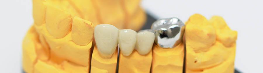Darstellung Gebiss mit Zahnersatz